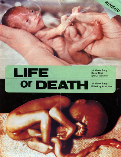partial birth abortion essays Partial birth abortion abortion is a very controversial topic all around the world some people argue that life beings at the very moment of the.
